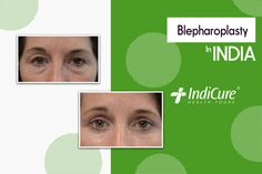We are pleased to share one of our patients amazing results post her #blepharoplasty in India. What do you think about the results? Comment below! #beforeandafter #eyelidsurgery #cosmeticsurgery #plasticsurgery #medicaltourism #throwback #bhfyp #follow #like Eye Bag Surgery, Eyelid Surgery, Face Plastic Surgery, Puffy Eyes, India, Amazing, Goa India, Indie