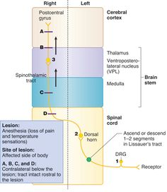 lateral spinothalamic tract