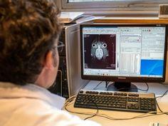 #L'épilepsie, handicapante, mal connue et mal prise en charge - Sciences et Avenir: Sciences et Avenir L'épilepsie, handicapante, mal…