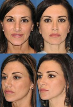 View our Rhinoplasty before and after photos and call us to schedule a consultation with us about rhinoplasty. Nose Plastic Surgery, Nose Surgery, Nose Reshaping, Rhinoplasty Before And After, Rhinoplasty Surgery, Mommy Makeover, Beauty Advice, Hair Care, Face
