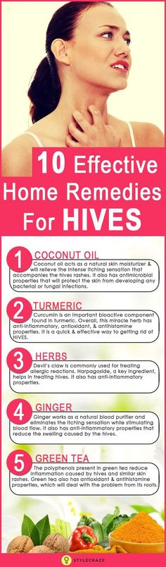 To say that an itch can be frustrating is an understatement. Yes, as much as you resist the urge to scratch that itch, you are bound to do just that! Hives are usually the outcome of an allergic reaction to something you have eaten But worry not! Home Remedies For Hives, Hives Remedies, Holistic Remedies, Skin Care Remedies, Natural Home Remedies, Natural Healing, Herbal Remedies, Health Remedies, Cold Remedies