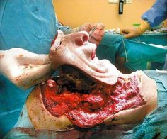 Amazing face transplant!  Modern medicine and science is simply remarkable!