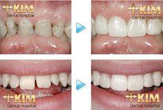 Phương pháp trám răng thẩm mỹ có bền không?