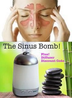 The Sinus Bomb - Fight Sinus Infections! Plus, a secret discount code for a great little diffuser of your own. Essential Oil Diffuser Blends, Doterra Essential Oils, Young Living Oils, Young Living Essential Oils, Natural Oils, Natural Healing, Home Remedies, Natural Remedies, Just In Case