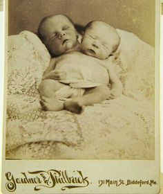 This victorian death photo is troubling not so much because all pictures of deceased people are troubling... or even because it is of an infant with two heads, but because I don't believe they had c-sections in Victorian times. So... some poor woman delivered these children naturally. That hurts to think about.
