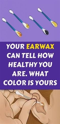 Your Earwax Can Tell How Healthy You Are. What Color Is Yours? Wellness Tips, Health And Wellness, Health And Beauty, Health Fitness, Herbal Remedies, Home Remedies, Natural Remedies, Cleaning Your Ears, Old Bras
