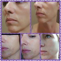 Rodan+Fields' UNBLEMISH Regimen is the #1 Premium Acne Brand in the US!!! Know anyone that could benefit from our products? Let's chat and save you 10-25% off! www.joierosa.myrandf.com