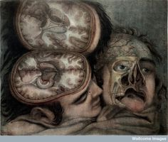 Two dissected heads by Gautier d'Agoty.