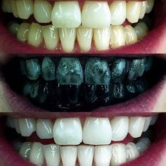 Activated Charcoal Teeth Whitening, Natural Teeth Whitening, Cosmetic Treatments, Coffee Staining, Natural Cleaning Products, Baking Soda, Natural Remedies, Sushi, Beauty Tips