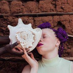 essere albini nell'africa sub-sahariana