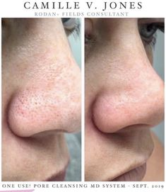 NEW Rodan+Fields Pore Cleansing MD System! No more blackheads! Consultant Search: Camille V. Blackhead Extraction Tool, Rodan And Fields Canada, Pore Cleansing, Unclog Pores, Clean Pores, Blackhead Remover, Free Makeup, Skin Care Regimen, Good Skin