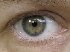 Soft Summer eye 3. Summer blue/grey with Aztec sun of Autumn. Summer with Autumn influence. Summers most often have blue or blue/grey eyes. But there are always exceptions, especially in Deep Soft Summers