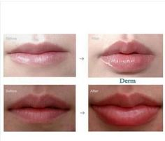 Wholesale Dermal Filler Hyaluronic Acid In Lips Injection Lip Fullness And The Lowest Price