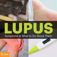 Lupus symptoms - Dr. Axe http://www.draxe.com #health #holistic #natural