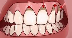 Gum Health, Oral Health, Health Tips, Health And Wellness, Health And Beauty, Health Care, Herbal Remedies, Health Remedies, Home Remedies