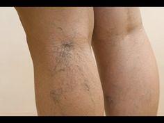 Las várices son esas venas dilatadas e inflamadas que vemos se elevan a la superficie de la piel, principalmente en las partes posteriores de las pantorrillas o