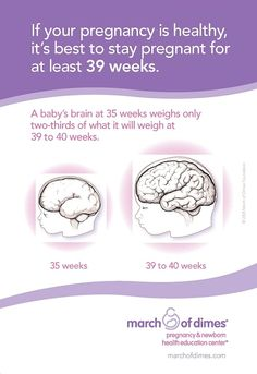 Late Preterm Brain Development Card  Carrie Furley shared this with me... He will get the feeding just needs a few more weeks