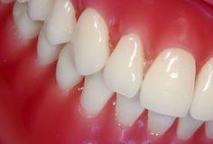 Cómo tratar el sangrado de las encías --- tratar  sangrado de las encías - causas
