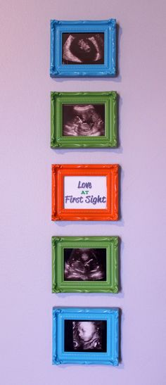 """A way to display all those ultrasound pictures.... """"Love at First Sight"""" :)"""