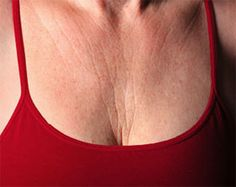 Eve's Special: 4 Tips In Preventing Neck And Chest Wrinkles Beauty Secrets, Beauty Hacks, Beauty Ideas, Beauty Care, Hair Beauty, Beauty Stuff, Age Spots On Face, Neck Wrinkles, Wrinkled Skin
