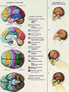 Brain injuries.