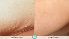 NeriumFirm specializes in contouring skin, why try anything else? Learn more here: http://zurybella.theneriumlook.com n.nerium.it/zurybella