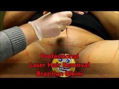 Professional Laser Hair Removal - Brazilian Bikini