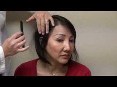 Woman Hair Loss Bald Surgery Treatment Hairline Transplant Restoration Result www.mhtaclinic.com - http://hairregrowthnews.com/woman-hair-loss-bald-surgery-treatment-hairline-transplant-restoration-result-www-mhtaclinic-com/