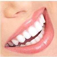 Shine Bright® - valgenduspliiats laitmatu naeratuse jaoks!