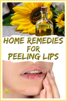 Discover home remedies for peeling chapped lips with plant oils and skin healing butter. Jump to theskincarereviews.com #peelinglips #peelinglipsremedies #drypeelinglipsremedy Dry Skin Remedies, Eczema Remedies, Subcutaneous Tissue, Clear Skin Tips, Chapped Lips, Sensitive Skin Care, Healthy Skin Care, Organic Skin Care, Skin Care Tips