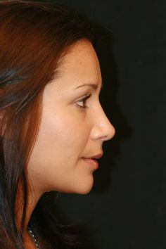 who hate their nose after rhinoplasty and now loves it - Google Search