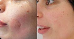 Cildinizin üzerindeki yara izlerinden kurtulmak için etkili bir krem arıyorsanız size önerdiğimiz yara izi giderici kremlere göz atmanızı tavsiye ederiz.