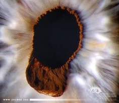 Name:  Glen Jenkins , CRA  Description:  #Ophthalmology #OphthalmicPhotography #Slitlamp – Ectropion uvea