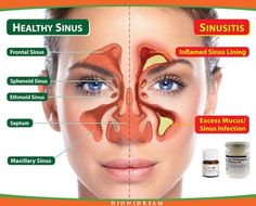 Il rimedio che vi presento è tanto semplice quanto efficace e serve per decongestionare il setto nasale e far passare l'infiammazione. Ecco cos'è e perché funziona