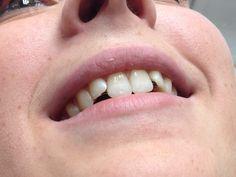 Modern braces are invisible as well as comfortable @ www.smilelounge.nl Moderne beugels voor volwassenen zijn onzichtbaar EN comfortabel #orthodontie #tandarts #orthodontist #amsterdam