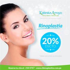 Rinoplastía | Promoción | Kalieska Arroyo