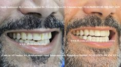 Dr Trivikram(Dr Vikram), an expert cosmetic dentist in Bangalore offers smile m. - smile designing cost in Bangalore - Ceremic Veneers Teeth, Dental Veneers, Cosmetic Dentistry Cost, Smile Dental, Dental Cosmetics, Smile Makeover, Botox Injections
