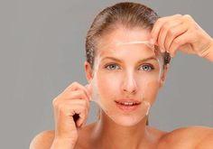 Химический пилинг!!!!!!  Химический пилинг!!!!!!  Химический пилинг — это процедура удаления поверхностных слоев эпителия кожи с помощью слабых растворов кислот с целью омоложения. Кислоты обеспечивают равномерное отшелушивание нескольких слоев омертвевших клеток, что способствует омоложение кожи, стимулирует синтез коллагена и эластина, приводит к возникновению молодых клеток. В результате такой стимуляции кожи происходит повышение ее тонуса и эластичность. Химический пилинг — это…