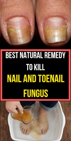 Some of these Best Natural Home Remedies for Toenail Fungus May Surprise You! Finding the best natural home remedies for toenail fungus can help you deal with this unsightly nail infection effectively without resorting to Toe Fungus Remedies, Toenail Fungus Remedies, Toe Fungus Cure, Fungus Toenails, Best Toenail Fungus Treatment, White Toenail Fungus, Cure For Toenail Fungus, Treating Toenail Fungus, Foot Fungus Treatment