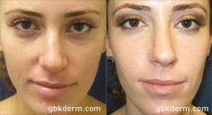 Did you know you can get Fillers under the eye to reduce dark under eye circles?