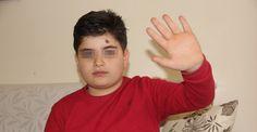 Erzurum'da engelli çocuk 'yavaş' yürüdüğü için saldırıya uğradı