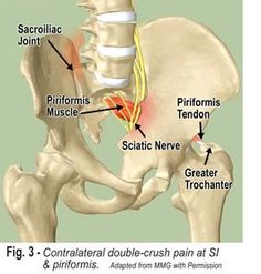 Bilateral hip and leg pain may indicate a 'double-crush' syndrome where lower quadrant muscle asymmetry displaces one SI joint and entraps the sciatic under piriformis on the contralateral side.