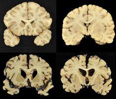Amerikan futbol liginde oynayıp hayatını kaybeden oyuncuların beyinlerinde yapılan incelemede, futbolcuların beyinlerinde ağır travmalar ve hasarlar gözlemlendi. Fotoğrafta üst tarafta normal hayat süren bir insanın beyni, alttaki de futbolcunun beyni. Siz siz olun kafanızı hasarlardan ve darbelerden koruyun. Biliyorsunuz sinir hücreleri harap olunca onarılamıyor.    Kaynak:http://www.   #amerikan futbolu #beyin #hasar