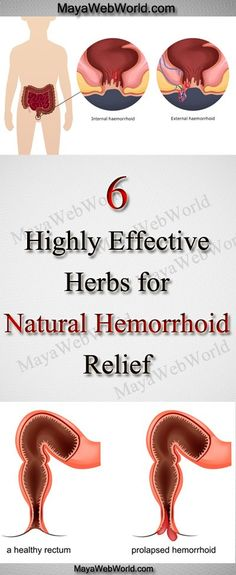How I Cured A Painful Hemorrhoid With 2 Natural Remedies