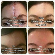 Scar treatment by Rodan and Fields amazing results. KDRussell1.myrandf.com