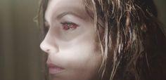 red eye drops
