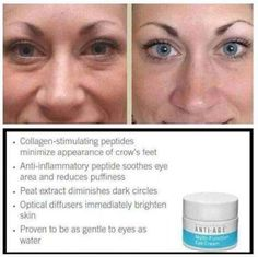 Tired looking eyes??  Our eye cream is the best!  (Above before & after results)  60 day money back guarantee, and the jar lasts 4months! stacygodfrey.myrandf.biz