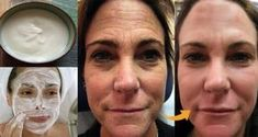 Thousands of Women Are Using This Homemade Cream to Rejuvenate Their Facial Skin and Get Rid of Wrinkles! You Will Look 10 Years Younger Overnight (RECIPE) Lemon Juice Face, Lemon Face, Beauty Care, Beauty Hacks, Wrinkle Remedies, Les Rides, Face Skin Care, E 10, Tips Belleza
