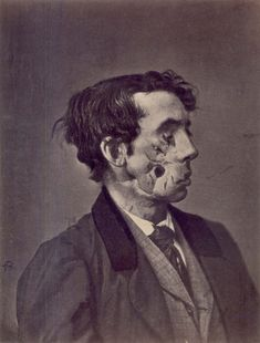 Civil War Facial trauma - 1865 illustration/photograph of a private injured in the American Civil War by a shell two years previously.