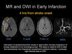 The brain stroke is responsible for coordinating every action and thoughts that in its through our body. Mri Brain, Brain System, Healthy Cholesterol Levels, Normal Blood Pressure, Cooking With Olive Oil, Nerve Cells, Science, Fitness, Nursing